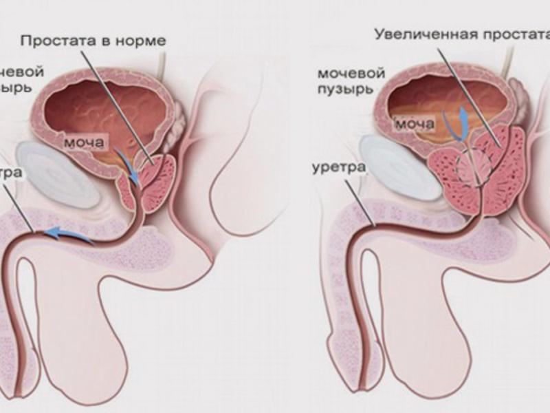 Лечение хронического простатита у мужчин в домашних условиях