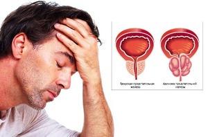Боли в паху слева у мужчин