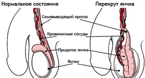 Перекрут яичка - мужские болезни