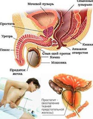 проявление простатита симптомы