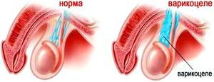 Методика лечения варикоцеле