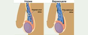 Почему возникает болезнь варикоцеле