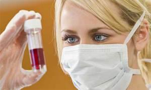 Диагностика ВИЧ - анализ крови дает самый точный ответ