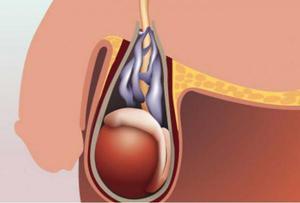 Проведение операции на варикоцеле