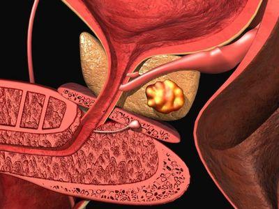 Калькулезный простатит: особенности развития, симптомы и лечения