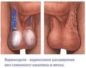 Что такое варикоз вен яичка и как он проявляется
