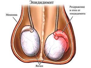 Эпидидимит у мужчин