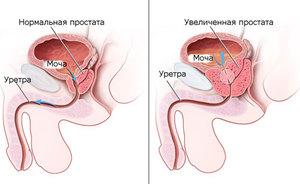 Аденома простаты - диагностика и методы лечения