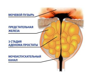 Третья  стадия аденомы простаты - методы лечения
