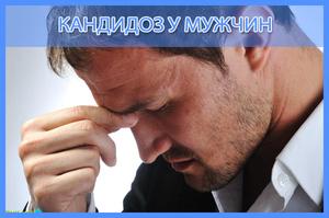 Кандидоз - особенности заболевания