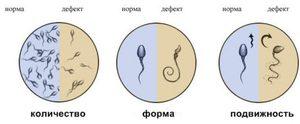 Что такое нормозооспермия
