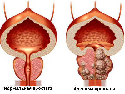 История болезни при аденоме предстательной железы: как правильно заполнять документ при раке и доброкачественной гиперплазии