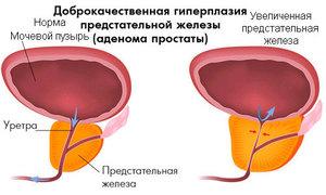 Доброкачественная гиперплазия  - наглядная схема