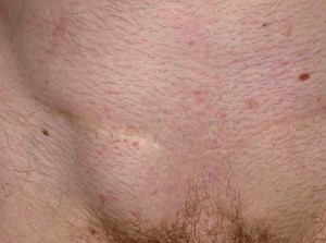 Как проявляется заболевани епаховая грыжа