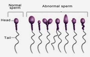 Патологические сперматозоиды фото