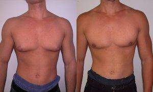 Лечение гинекомастии у мужчин без операции