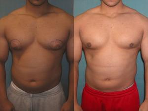 гинекомастии у мужчин фото