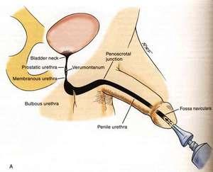Как лечить стриктуру уретры