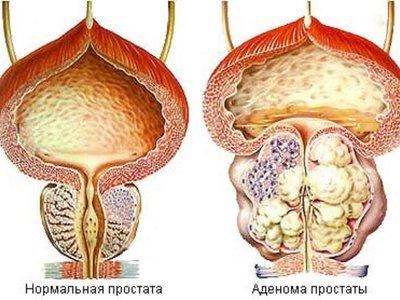 Нормальный размер и объем предстательной железы у мужчин по возрастам