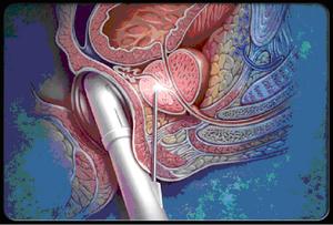 Как делается биопсия простаты