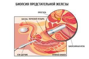 Біопсія простати як проводиться