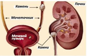 Какие симпомы при заболеваниях почек