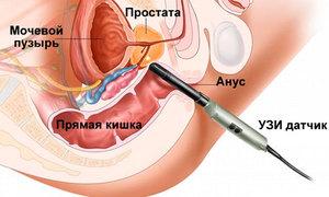 Последствия после биопсии