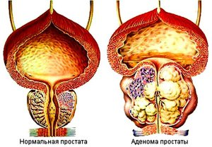 Травы для лечения простатита и аденомы предстательной железы