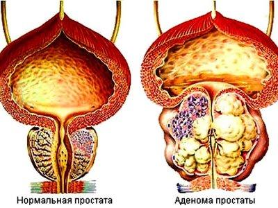 Травы при аденоме предстательной железы и какие для лечения простатита