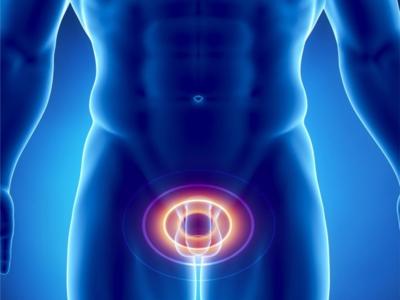 Основные подходы к лечению хронического простатита у мужчин