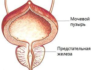 Кальцинат предстательной железы массаж