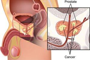 Как лечить кальценаты в предстательной железе