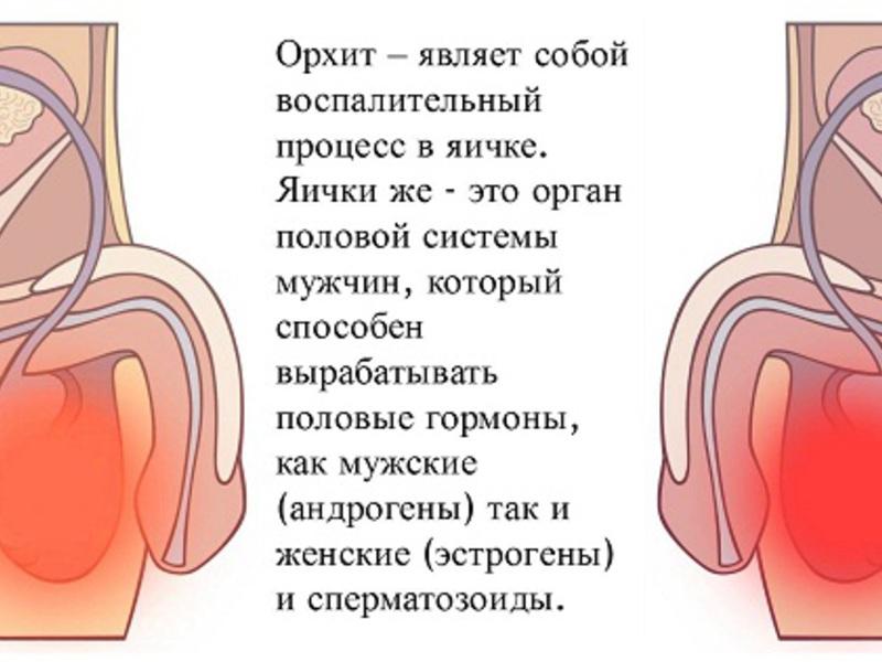 Простатит симптомы боли в яичках лечение при простатите в домашних условиях видео