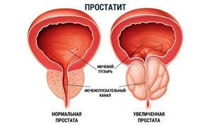 Какое самое эффективное лекарство от простатита
