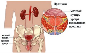 Симптомы простатита и опасность этой болезни