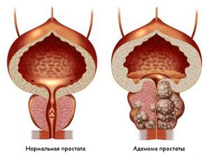 Аденома простаты - немного об анатомии человека