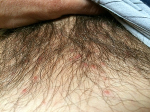Чем лечить паховый грибок у мужчин