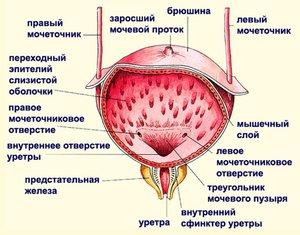 Какие заболевания мочевого пузыря могут быть