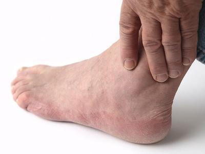 Причины отка ступней ног в щиколотке и лодыжке у мужчины