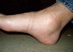 Возможные причины опухлости ног