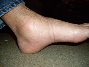 Как быть при опухлости ног