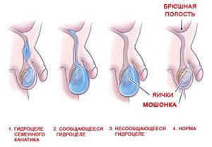 Яички у мужчин - как диагностировать проблему