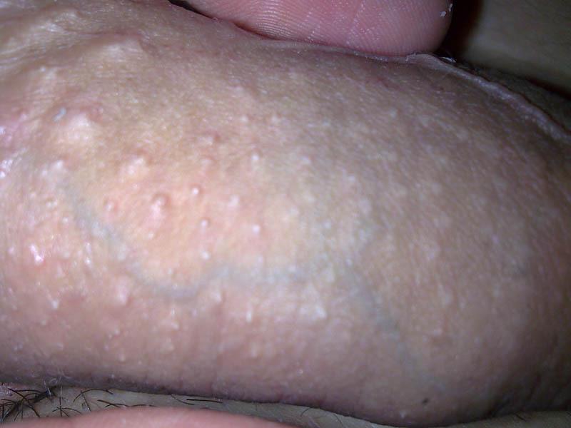 Сыпь по краю головки пениса