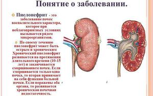 Пиелонефрит - подробное описание заболевания