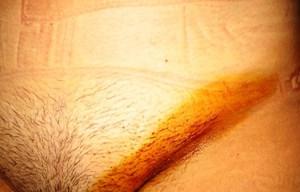 фото воспаленных лимфоузлов в паху