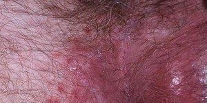 Раздражение в области паха у мужчин: симптомы поражения интимной ...