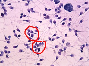chto-oznachayut-epitelii-v-spermogramme